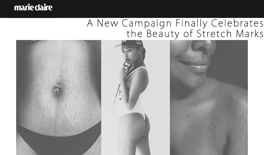 A New Campaign Finally Celebrates the Beauty of Stretch Marks